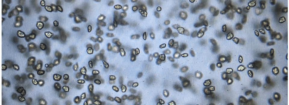 IFOP investigates  ichthyotoxic microalgae Heterosigma akashiwo Flowering in Comau fjord, April 2021